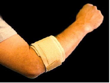 tennisarmbrace - tennisarm-behandeling