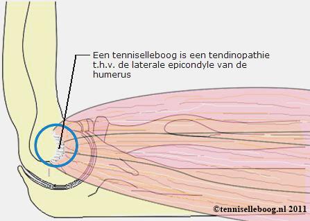 tenniselleboog - tennisarm - tennisarm-behandeling