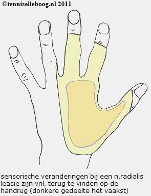 n. radialis